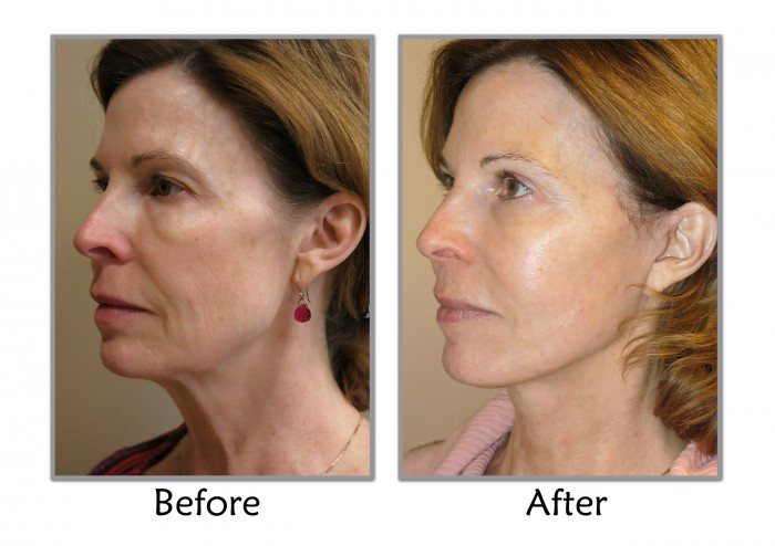 MACS facelift procedure