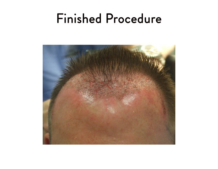 Finished Hair Restoration Surgery