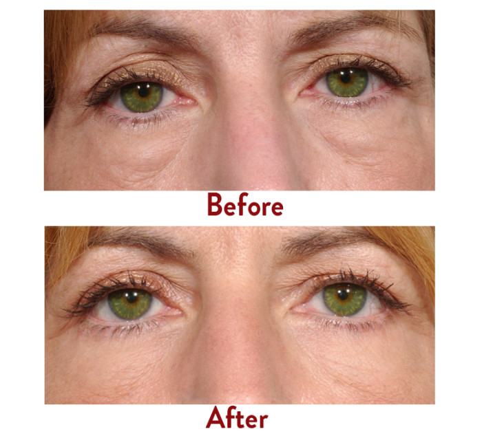 Popular Ways To Eradicate Puffy Under Eye Bags And Dark Rings For Men And Women - With No Surgery - YouTube