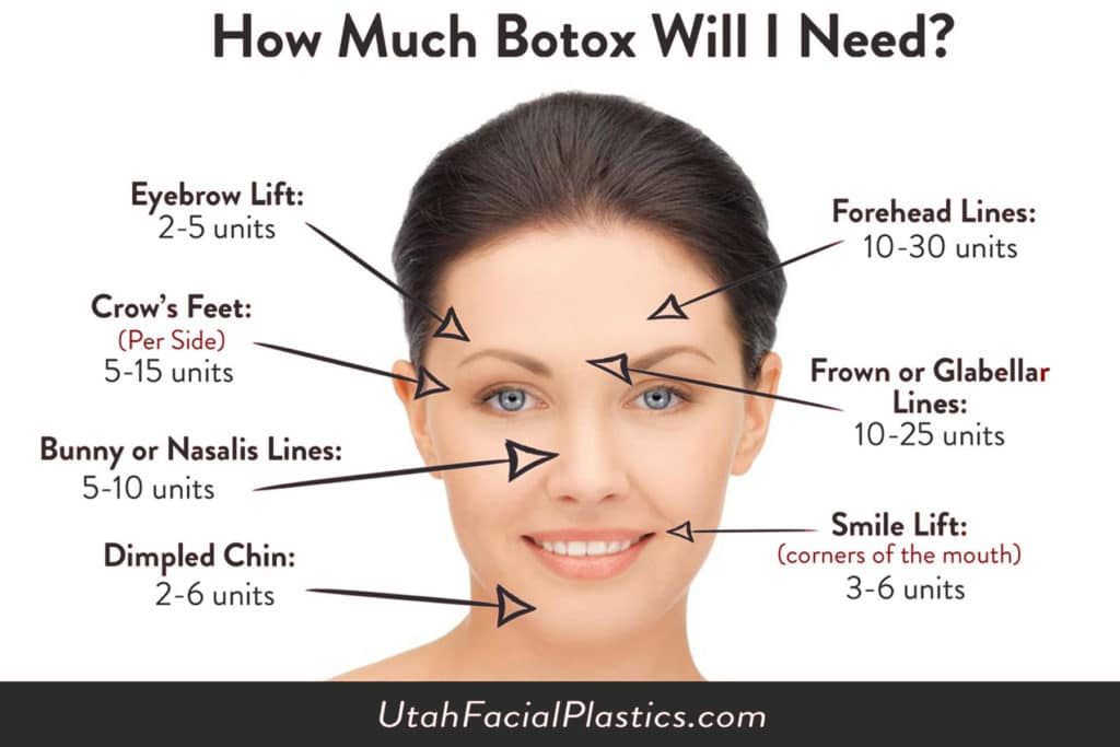 Botox Salt Lake City, UT