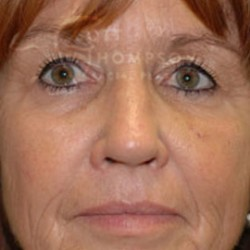 Dermal Fillers Patient 17130