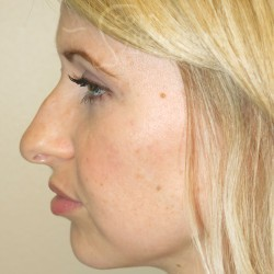 Non-Surgical Rhinoplasty – 899