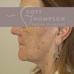 MACS Facelift Before and After Photos | Utah Facial Plastics 210