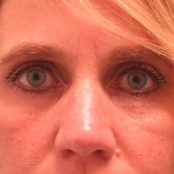 Lower Eyelid Skin Pinch by Dr. Henstrom