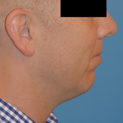 Chin Implant and Submental Liposuction by Dr. Thompson