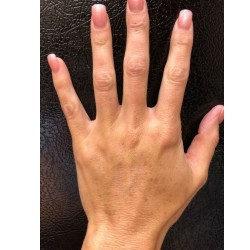 Hand Rejuvenation with Restylane Lyft