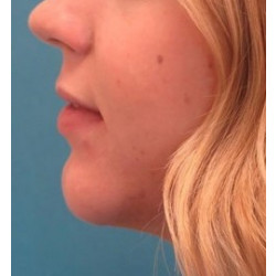 Chin Implant by Dr. Henstrom