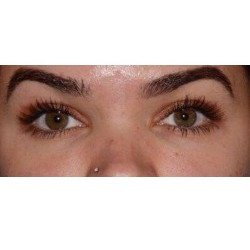Upper Blepharoplasty and Under- Eye Filler  by Dr. Thompson