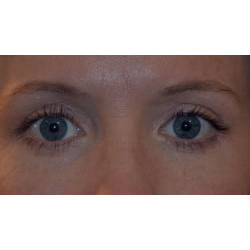 Upper and Lower Eyelid Surgery by Dr. Henstrom