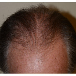 Hair Transplant by Dr. Thompson