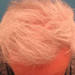 FUT Hair Transplant by Dr. Thompson