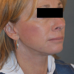 Facelift and Perioral Dermbrasion by Dr. Thompson