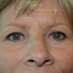 Upper Blepharoplasty (Eyelid Surgery) – 676