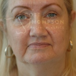 Facelift Before and After Photos | Utah Facial Plastics 292