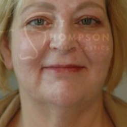 Facelift Before and After Photos | Utah Facial Plastics 293