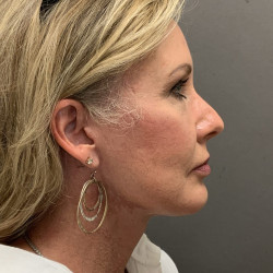 Facelift and Upper Blepharoplasty by Dr. Henstrom