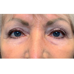 Upper Blepharoplasty by Dr. Thompson