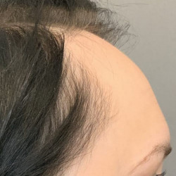 Forehead Reduction by Dr. Thompson