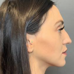 Septorhinoplasty by Dr. Henstrom