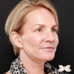Facelift, Periorbital Fat Injections, Upper Blepharoplasty & Lip Lift by Dr. Thompson