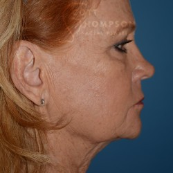 FACELIFT | FAT INJECTIONS | BROWLIFT – 767