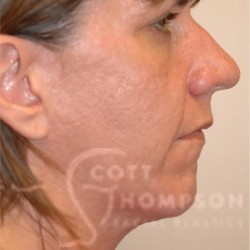 Rhinoplasty/Chin Augmentation Patient