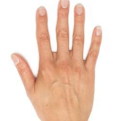 Hand Rejuvenation | Radiesse – 700