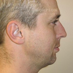 Chin Augmentation Before and After Photos 200